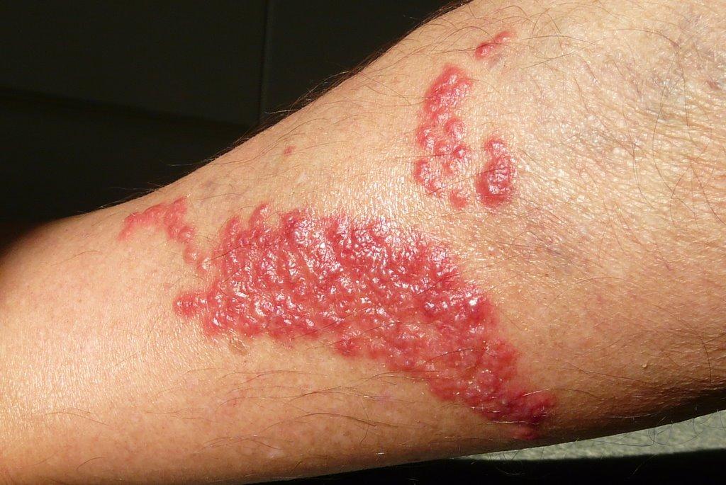 pelagia noctiluca -conseguenze